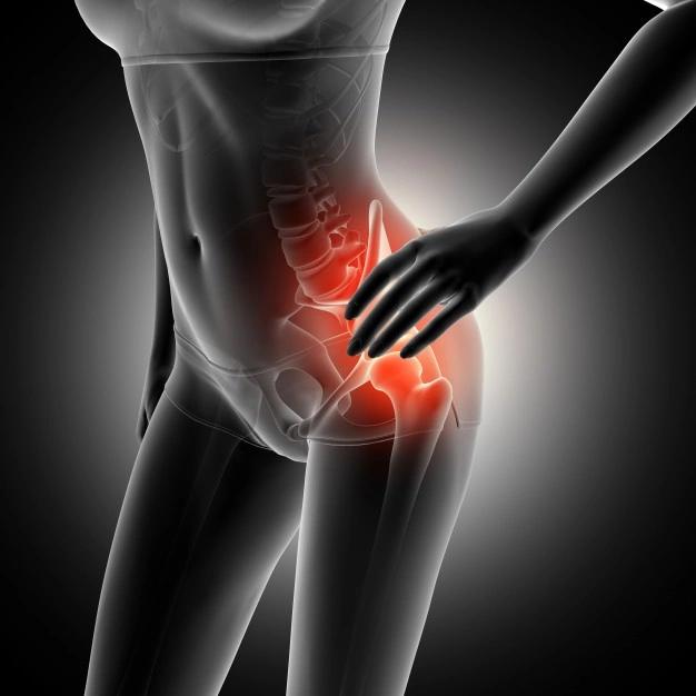 Quels sont les signes d'un problème de hanche